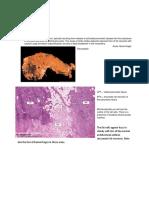 Enzymatic Fat Necrosis.docx