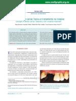 tratamiento de la caries hacia un metodo no inasivo.pdf