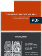 TUMORES INTRAVENTRICULARESss