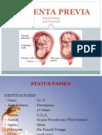 127581296-plasenta-previa-ppt.ppt