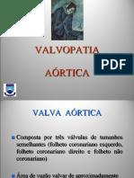 02 VALVOPATIA AÓRTICA
