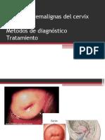 lesionespremalignasdelcervix-130812132140-phpapp02