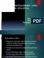 electroencefalogramaeegenepilepsia-111022212655-phpapp02