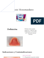 Prótesis Monomaxilar