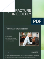 Hip Fracture in Elderly
