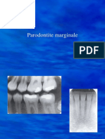 parodontitemarginale.ppt