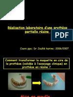 Prothese Pap Miseenmoufle1 151124095514 Lva1 App6891