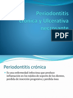 Periodontitis crónica y ulcerativa necrosante ANGELINO Y GRIJALVA