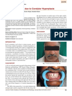Facial Asymmetry due to Condylar Hyperplasia.pdf
