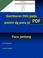 Gambaran Pemacu Jantung Pada ECG