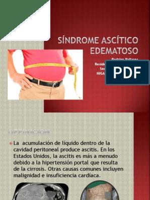 acumulación de líquido edematoso en la cavidad abdominal