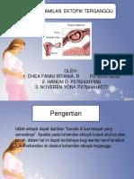 Kehamilan Ektopik Terganggu (KET)