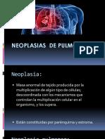 Neoplasias de Pulmón