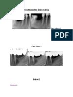 desobturacion endodontica