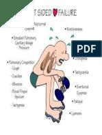 Left Sided Heart Failure Illustration.pdf