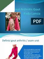 Mengenal Arthritis Gout Pada Lansia