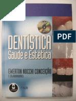 Dentística Ewerton Nocchi