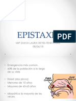 Epistaxis (1)
