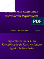 O ECG Nas Sindromes Coroarios Isquêmicos