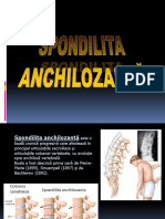 spondilita-ppt.ppt