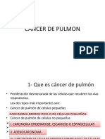 Cancer de Pulmon Essalud