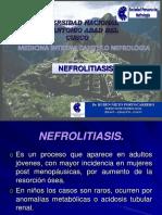 4)NEFROLITIASIS