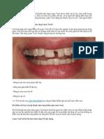 Trám răng Laser Tech giải pháp xóa sổ khiếm khuyết răng vỡ, sứt, mẻ