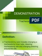 tracheotomy care
