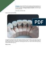 Bọc răng sứ nào tốt nhất - có nên chọn răng sứ Cercon.pdf