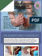 10.-PIE-EQUINO-VARO-CONGÉNITO
