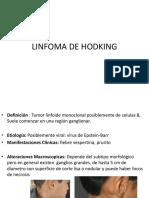 Linfoma de Hodking