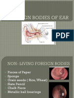 Foreign Bodies of Ear