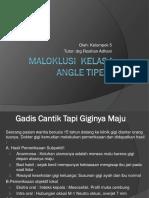 1. Maloklusi  Kelas I Angle Tipe 2.pptx