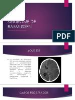 Sindrome de Rasmussen