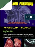 Aspergiloma Pulmonar-1 (1)