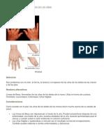 Enfermedades y Anomalias de Las Uñas