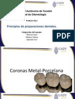 Principios de Preparaciones Dentarias.