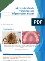 Injerto de Tejido Blando y Matrices de Renegeracion Tisular