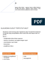 glukoma ppt