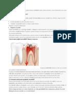 Pulpita dentară