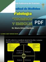 trombosisyembolia-110502213048-phpapp02.pptx