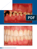 International Journal of Brazilian Dentistry - 2013