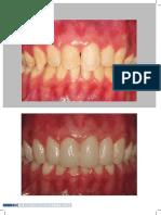 International Journal of Brazilian Dentistry