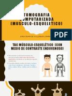 Tomografía Computarizada Musculo esquelético.