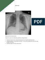 Hipersensitivitas pneumonitis2