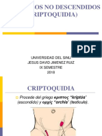 TESTICULOS NO DESCENDIDOS (CRIPTOQUIDIA).pptx