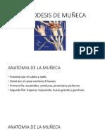 Artrodesis de Muñeca Presentacion