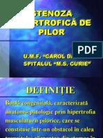 Stenoza hipertrofica pilorica
