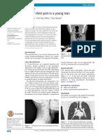 bts guidelines pneumothorax 2016 pdf