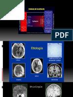 epilepsia y fisiopato